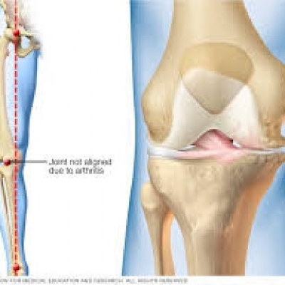 How Does Knee + Joint Renew Work?