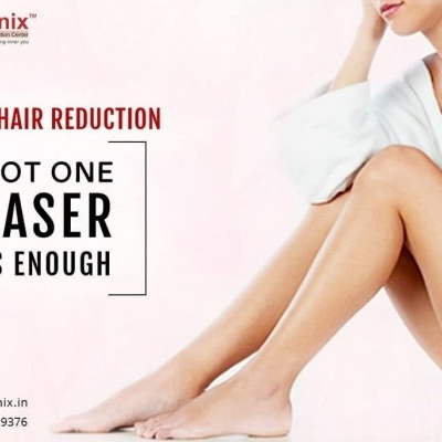 What are the Preparatory Steps for Laser Hair Removal?